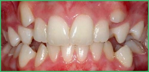 Ưu nhược điểm của niềng răng invisalign 3