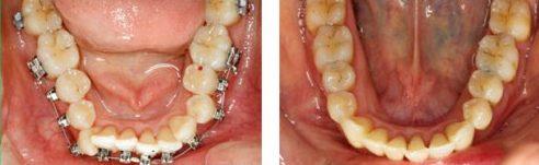 Ưu nhược điểm của niềng răng invisalign 4