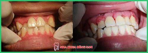 Ưu nhược điểm của niềng răng invisalign 6