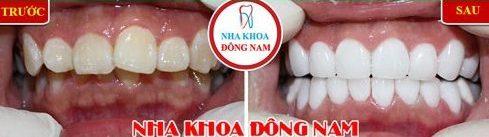 Ưu nhược điểm của niềng răng invisalign 7