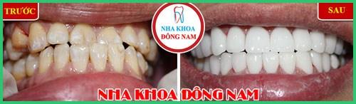 Ưu nhược điểm của niềng răng invisalign 8