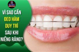 Vì sao cần đeo hàm duy trì sau khi niềng răng