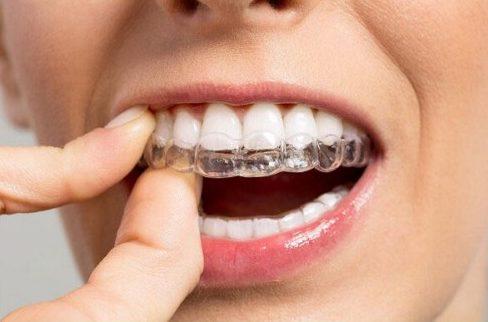 Vì sao cần đeo hàm duy trì niềng răng1