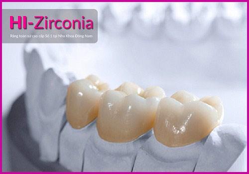 Vì sao răng toàn sứ cao cấp Hi-Zirconia được nhiều người dùng 1