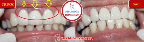 Vì sao răng toàn sứ cao cấp Hi-Zirconia được nhiều người dùng 3