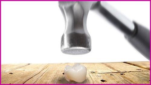 Vì sao răng toàn sứ cao cấp Hi-Zirconia được nhiều người dùng 4