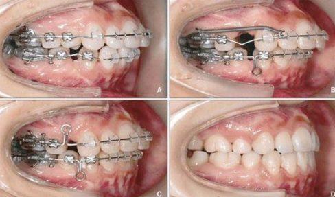 Bị răng hô có phải do nghiệp báo không 5