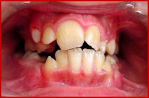Các giai đoạn điều trị răng bẩm sinh 1