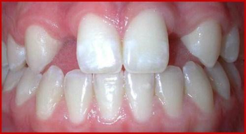 Các giai đoạn điều trị răng bẩm sinh 10