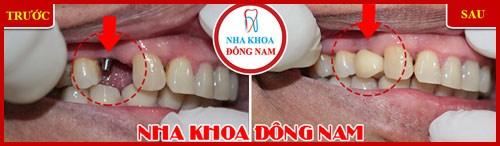 Các giai đoạn điều trị răng bẩm sinh 11