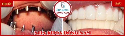 Các giai đoạn điều trị răng bẩm sinh 12