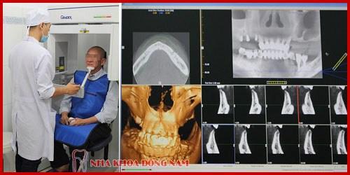 Các giai đoạn điều trị răng bẩm sinh 14