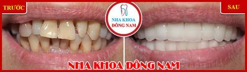 Các giai đoạn điều trị răng bẩm sinh 3