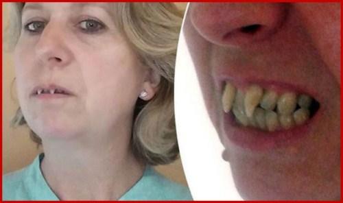 Các giai đoạn điều trị răng bẩm sinh 4