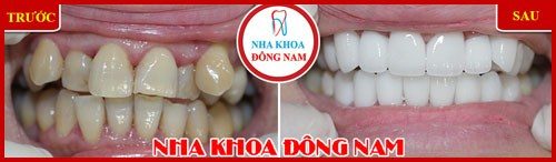 Các giai đoạn điều trị răng bẩm sinh 5