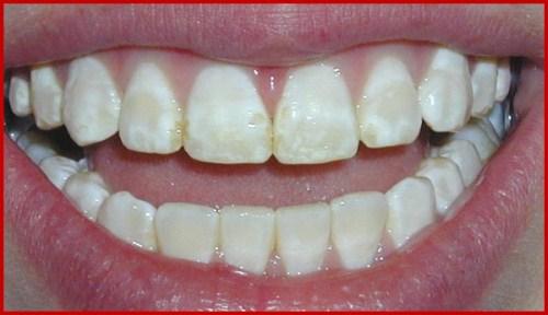 Các giai đoạn điều trị răng bẩm sinh 6