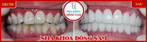 Các giai đoạn điều trị răng bẩm sinh 7