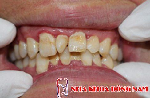 Các giai đoạn điều trị răng bẩm sinh 8