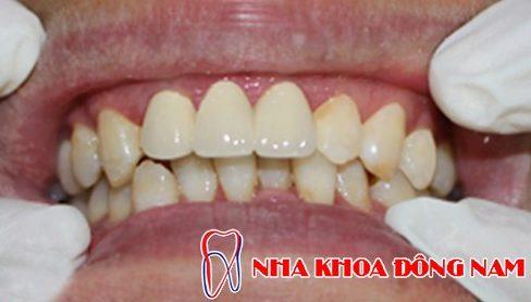 Các giai đoạn điều trị răng bẩm sinh 9