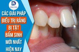 các giải pháp điều trị răng bị dị tật bẩm sinh mới nhất hiện nay