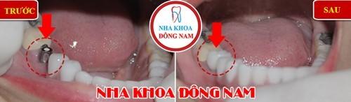cắm implant răng hàm