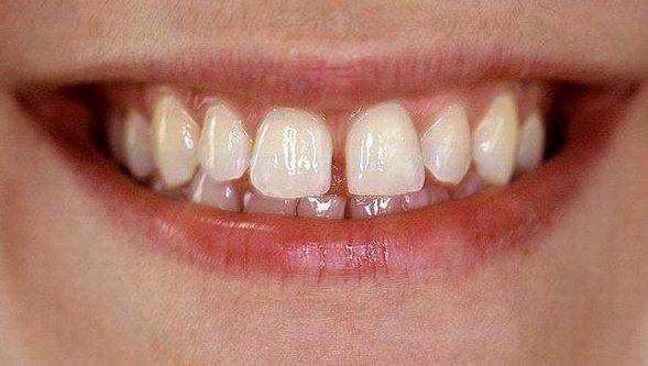 Xỉa răng có làm răng thưa không 1