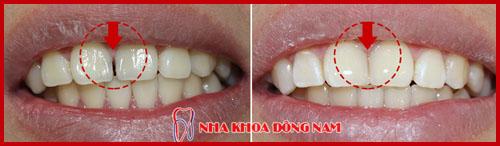 Xỉa răng có làm răng thưa không 5