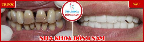 Xỉa răng có làm răng thưa không 6