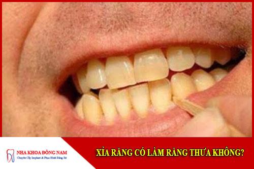 Xỉa răng có làm răng thưa không