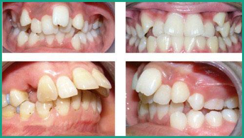 Bị viêm lợi khi dùng miếng dán trắng răng 1