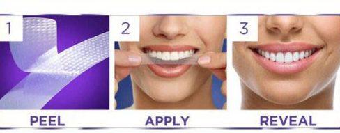 Bị viêm lợi khi dùng miếng dán trắng răng 2
