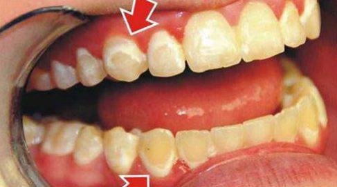 Bị viêm lợi khi dùng miếng dán trắng răng 4