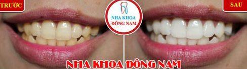 Bị viêm lợi khi dùng miếng dán trắng răng 5