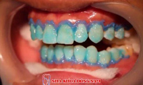 Bị viêm lợi khi dùng miếng dán trắng răng 8