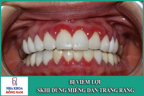 Bị viêm lợi khi dùng miếng dán trắng răng