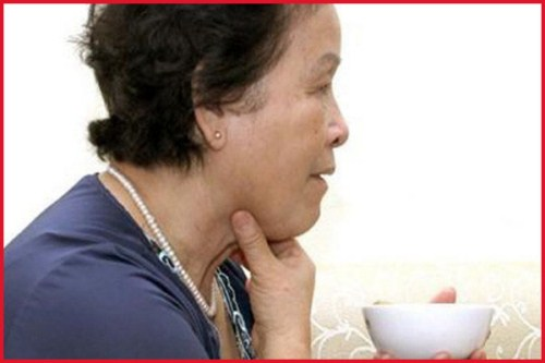 Bó tay khi bị ung thư răng giai đoạn cuối 2