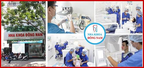 Cấy ghép Implant có trả góp tại nha khoa Đông Nam 5