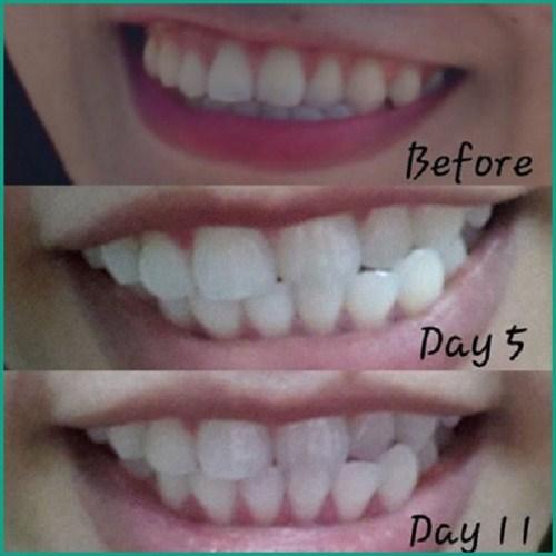 Lợi và Hại khi dùng miếng dán trắng răng tức thì 1