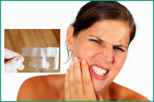 Lợi và Hại khi dùng miếng dán trắng răng tức thì 3