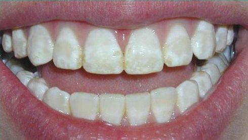 Lợi và Hại khi dùng miếng dán trắng răng tức thì 4