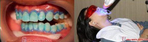 Lợi và Hại khi dùng miếng dán trắng răng tức thì 6