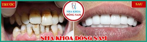 Lợi và Hại khi dùng miếng dán trắng răng tức thì 8