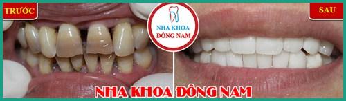 Lợi và Hại khi dùng miếng dán trắng răng tức thì 9
