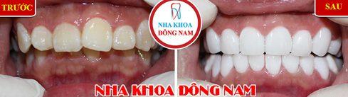 Nha khoa bọc răng sứ trả góp 0% lãi suất tại TPHCM 6