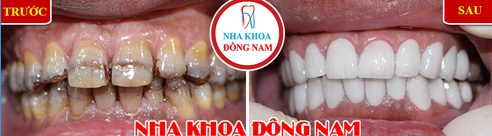 Nha khoa bọc răng sứ trả góp 0% lãi suất tại TPHCM 7