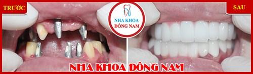 Nha khoa điều trị răng miệng trả góp 0% lãi suất 1