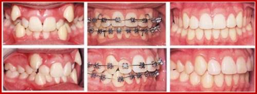 Nha khoa điều trị răng miệng trả góp 0% lãi suất 4