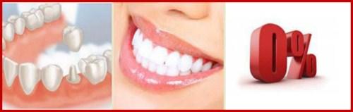 Nha khoa điều trị răng miệng trả góp 0% lãi suất 5