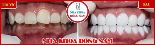 Nha khoa điều trị răng miệng trả góp 0% lãi suất 7