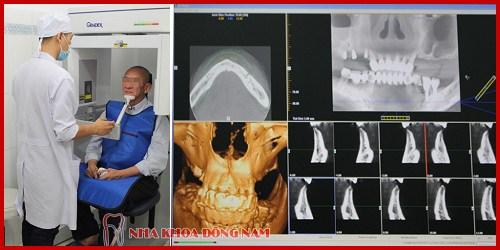 Nha khoa điều trị răng miệng trả góp 0% lãi suất 9